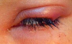 Not my eye